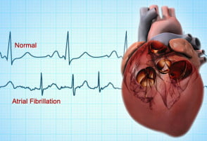 Atrial Fibrillation Disease