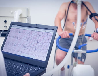 What a Cardiac Stress Test Reveals