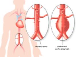Abdominal Aorta Scan