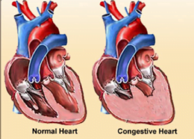 failure congestive heart