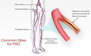 Peripheral Artery Doppler